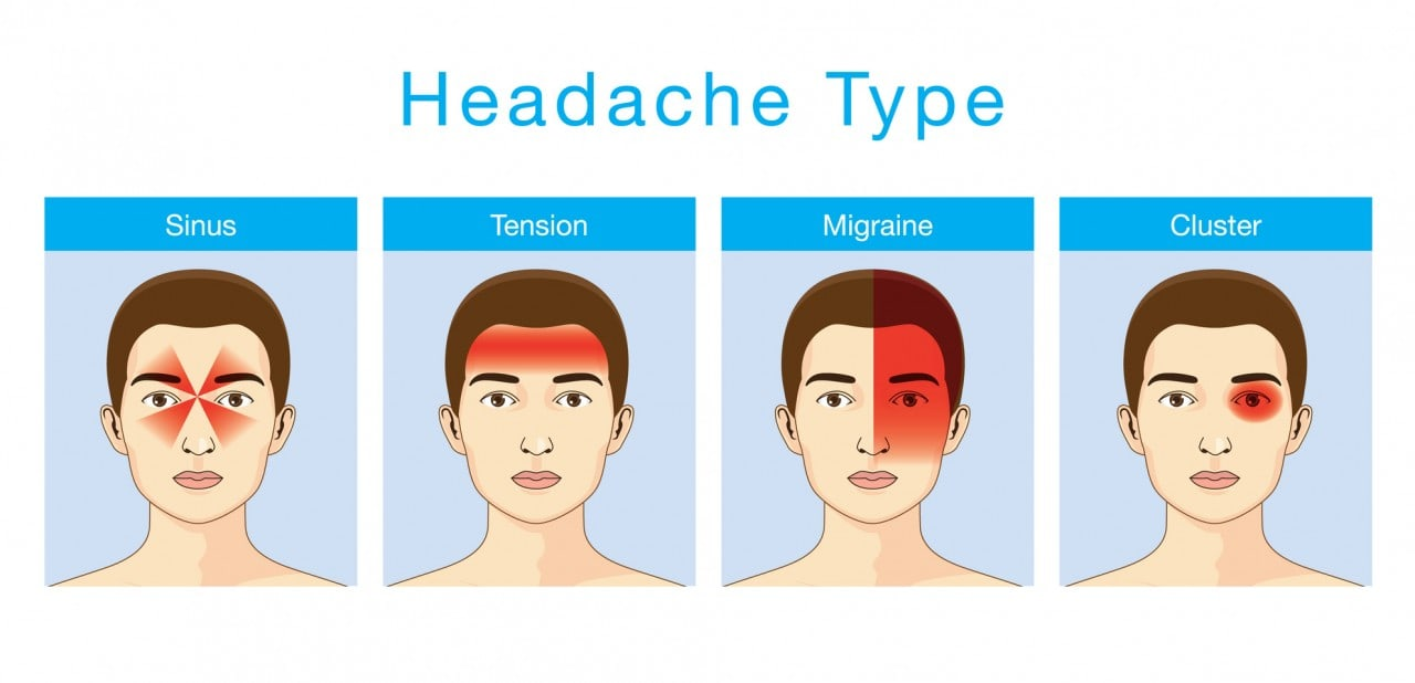 Cluster-Kopfschmerzen Symptome Behandlung