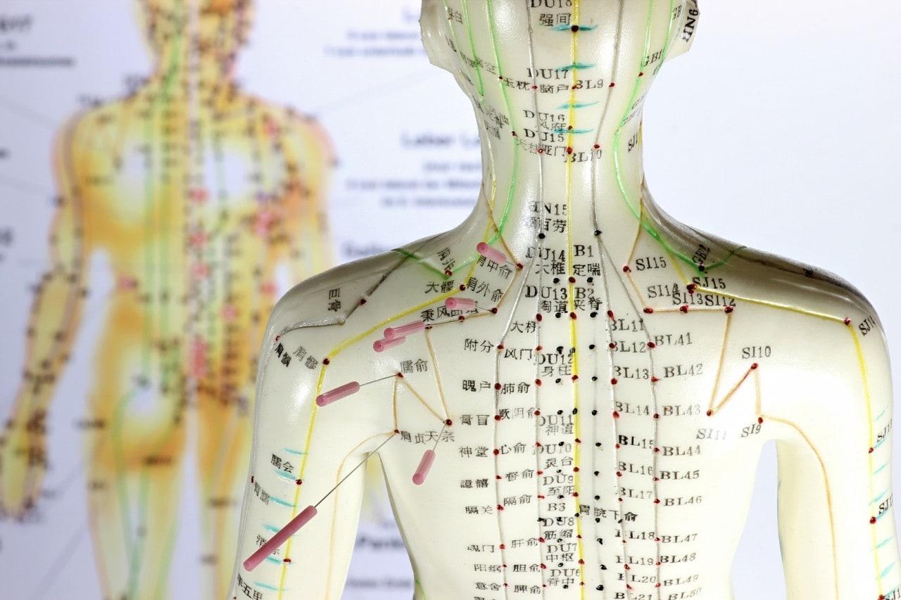 Akupunktur Behandlung Wirkung